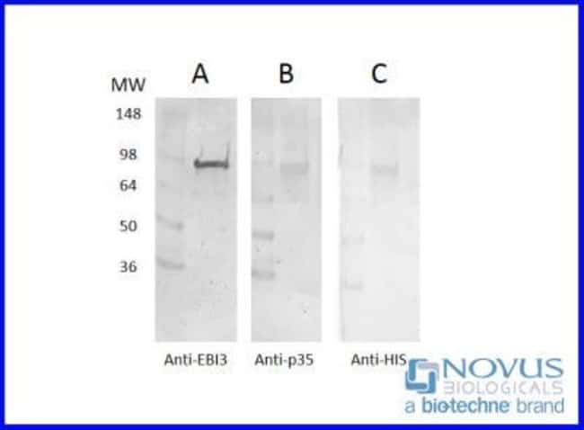Novus BiologicalsRecombinant Human EBI3 HIS-tagged Protein:Biochemical