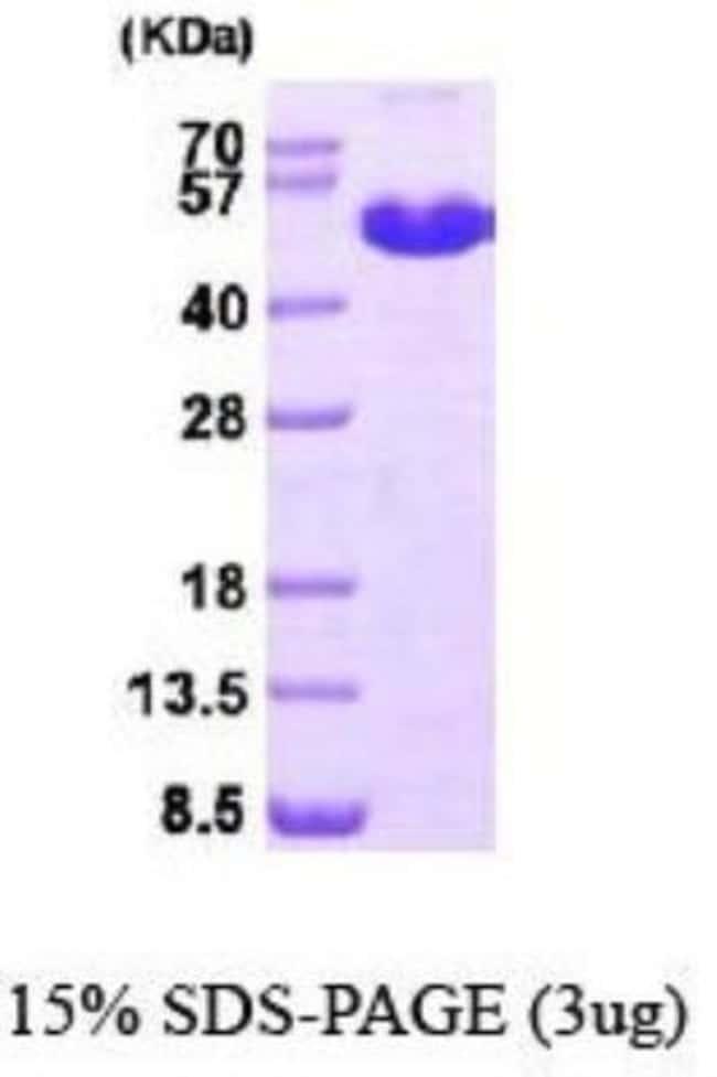 Novus Biologicals Human MAT1A Recombinant Protein 0.05mg:Life Sciences