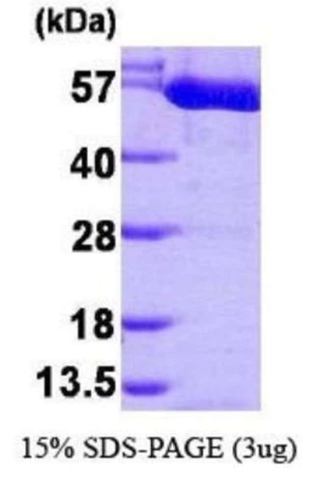 Novus Biologicals Human PKM2 Recombinant Protein 0.1mg:Life Sciences