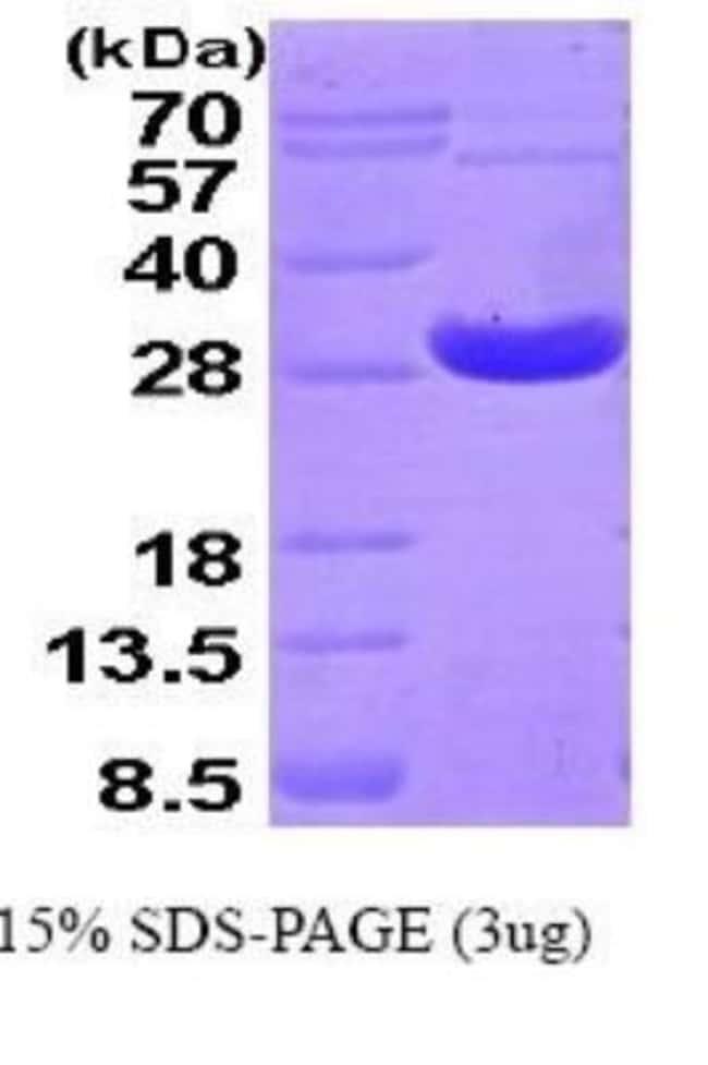 Novus Biologicals Human Peroxiredoxin 4 Recombinant Protein 0.1mg:Life