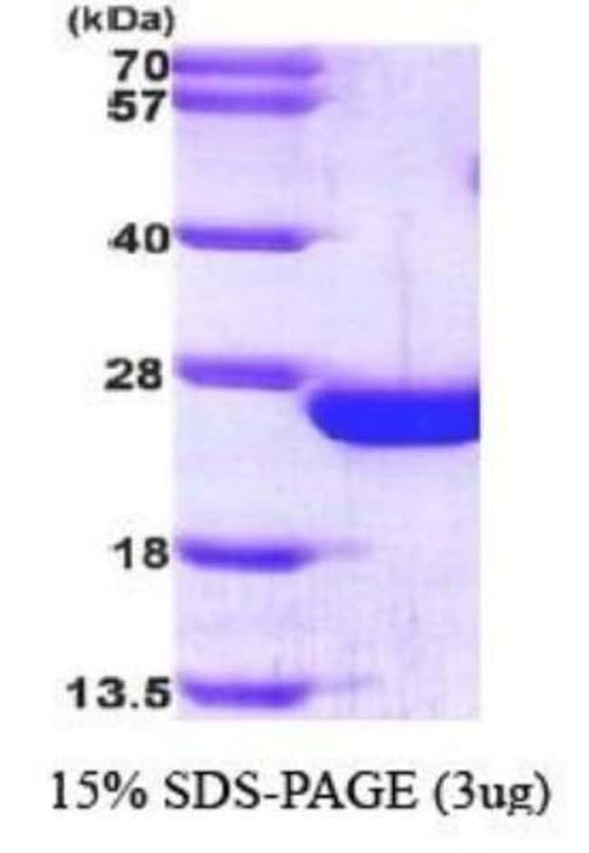 Novus Biologicals Human RAC2 Protein 0.1mg; Unlabeled:Life Sciences