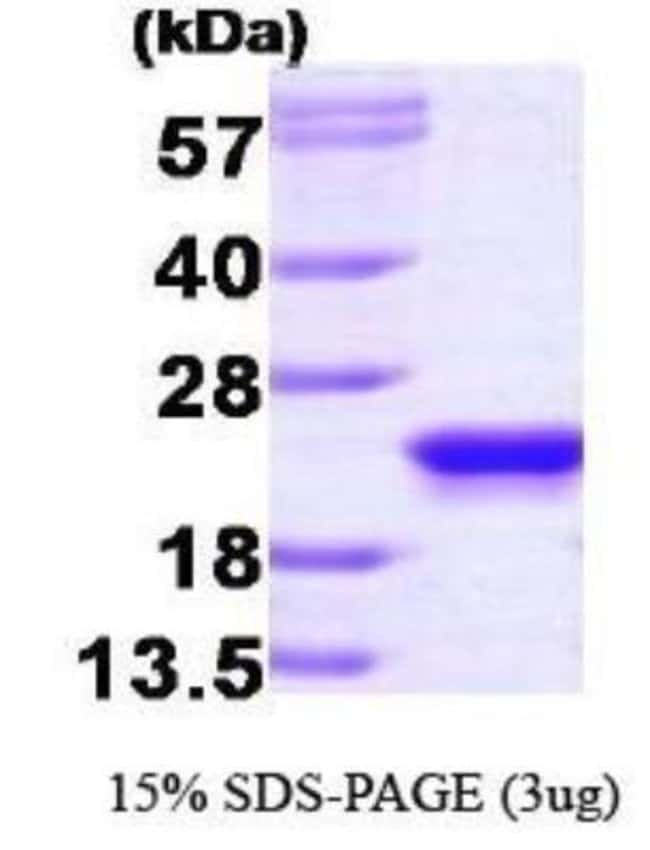 Novus Biologicals Human RKIP/PBP Recombinant Protein 0.1mg:Life Sciences