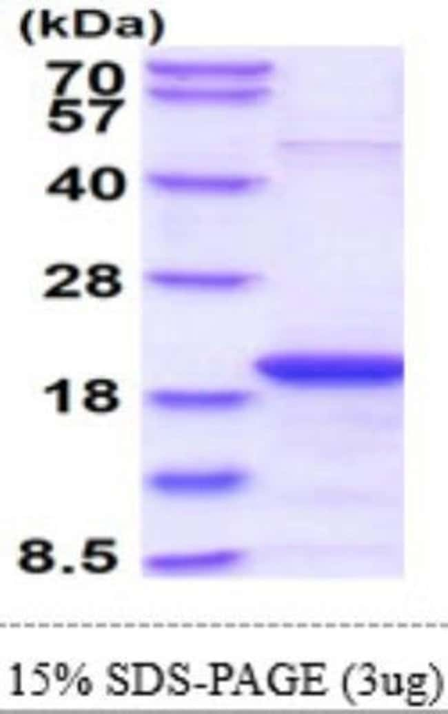 Novus Biologicals Human Skp1 Recombinant Protein 0.1mg:Life Sciences