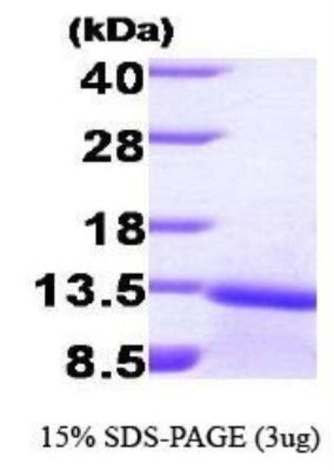 Novus Biologicals Human TGF-beta 1 Protein 0.1mg; Unlabeled:Life Sciences