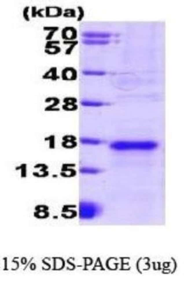 Novus Biologicals Mouse VEGF Recombinant Protein 0.05mg:Life Sciences