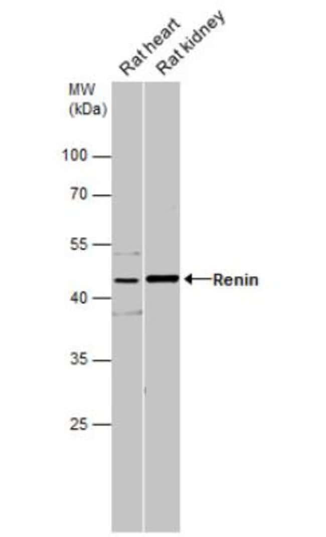 anti-Renin, Polyclonal, Novus Biologicals 0.1mg; Unlabeled:Life Sciences