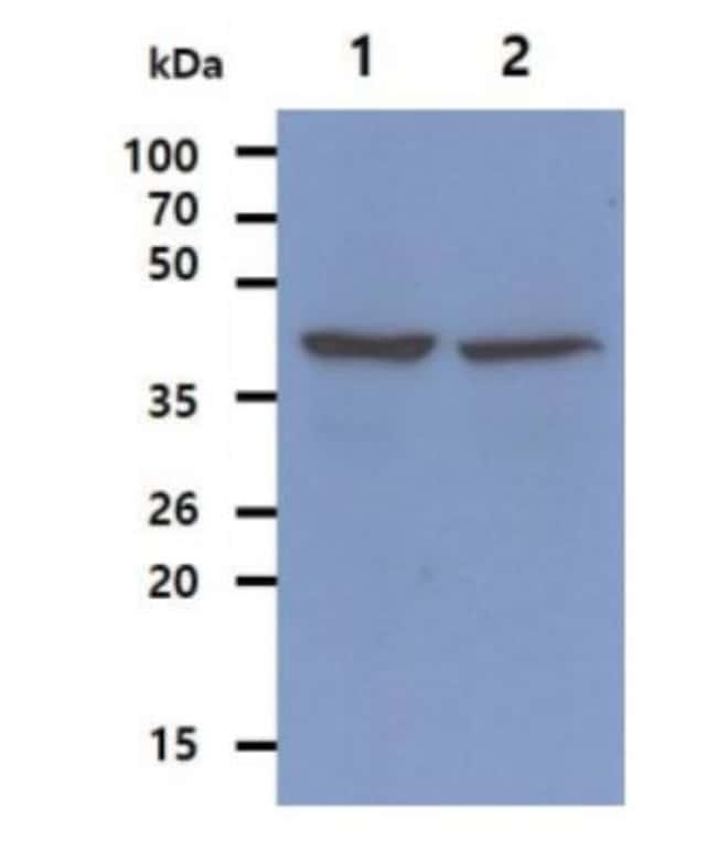 anti-Ribonuclease Inhibitor, Clone: 1H23, Novus Biologicals 0.1mL; Unlabeled:Antibodies