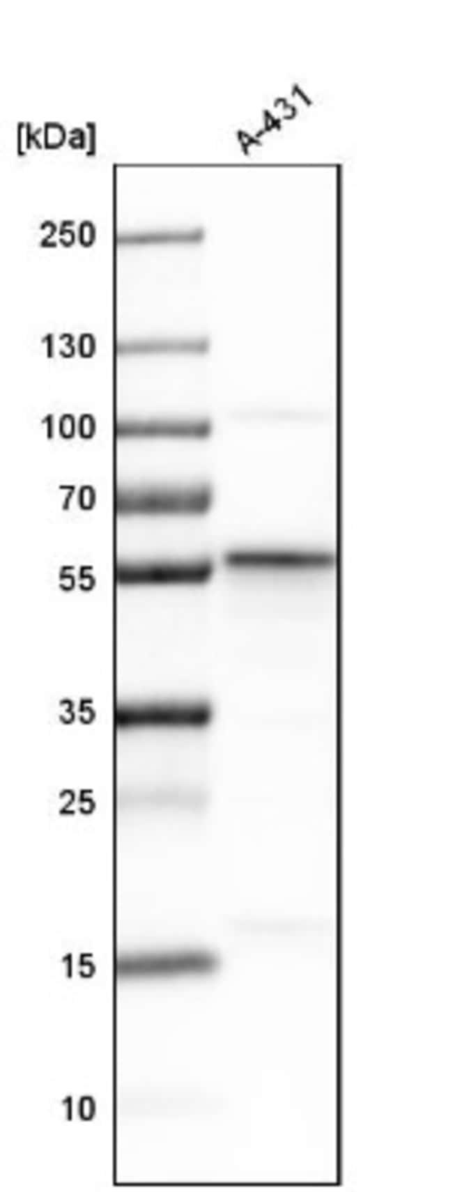 anti-SEC62, Polyclonal, Novus Biologicals 0.1mL; Unlabeled:Life Sciences