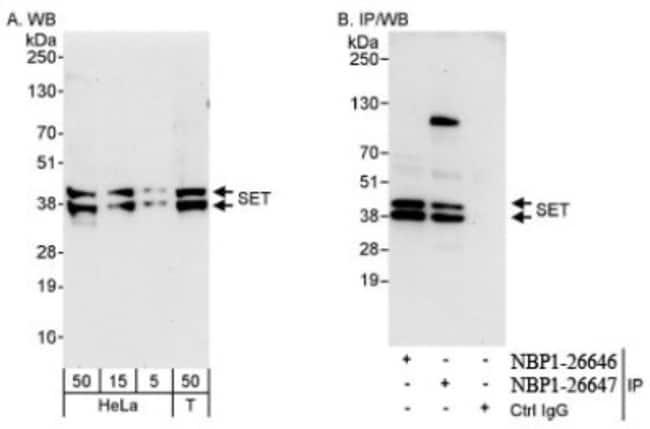 anti-SET, Polyclonal, Novus Biologicals 0.1mL; Unlabeled:Life Sciences