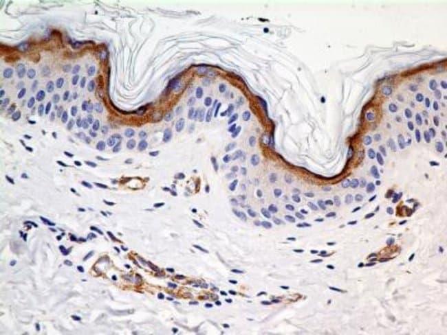 Mouse anti-SLC31A1/CTR1, Clone: 5E6.1B4, Novus Biologicals:Antibodies:Primary