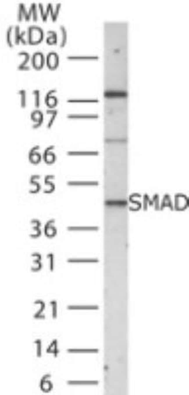 SMAD1/5/8/9 Rabbit anti-Human, Mouse, Polyclonal, Novus Biologicals:Antibodies:Primary