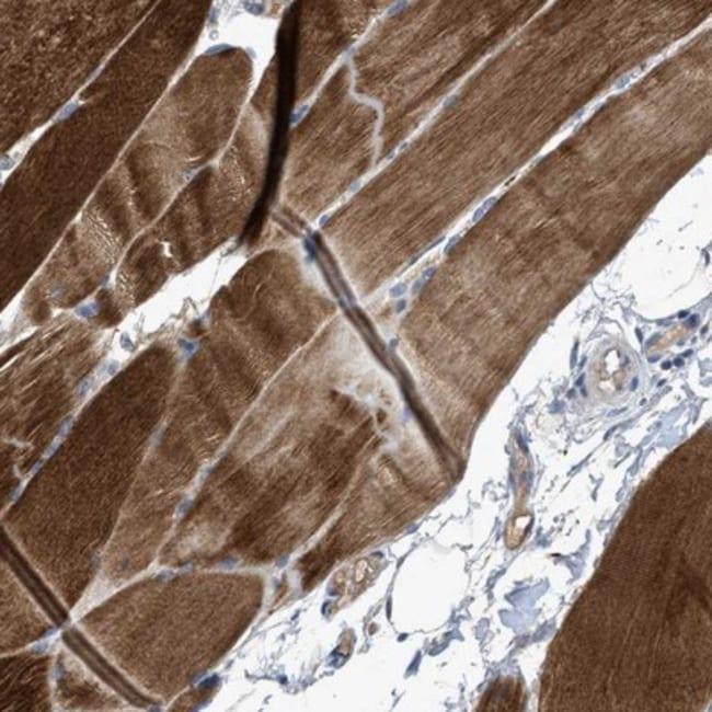 anti-SNF1LK2/SIK2, Polyclonal, Novus Biologicals 0.1mL; Unlabeled:Life