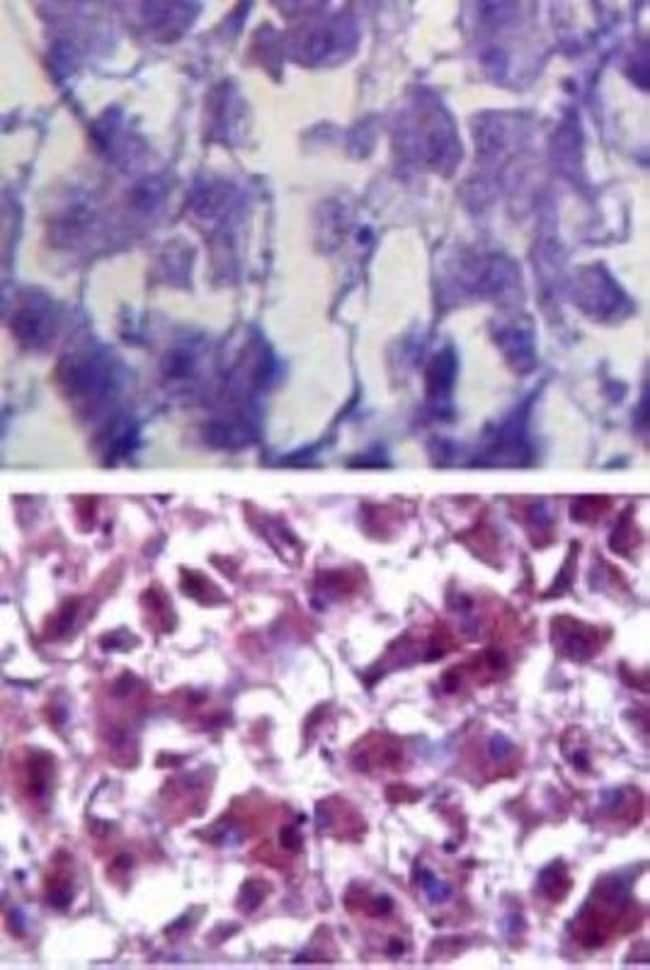 anti-SOD1/Cu-Zn SOD, Polyclonal, Novus Biologicals:Antibodies:Primary Antibodies