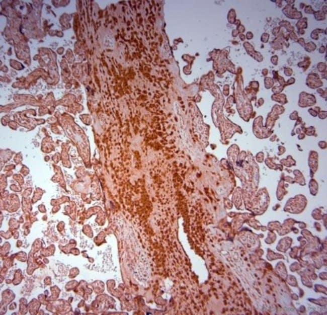 anti-SRD5A2, Polyclonal, Novus Biologicals 0.1mL; Unlabeled:Life Sciences