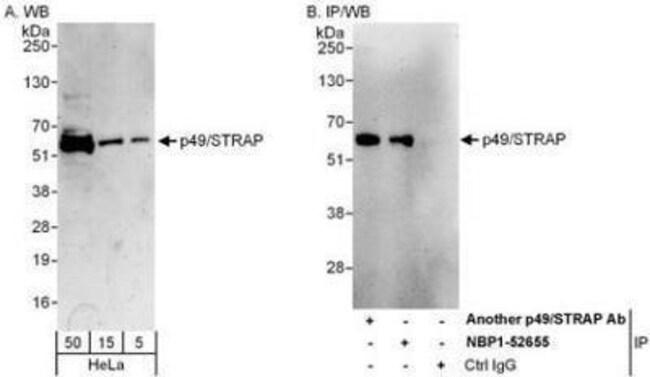 anti-SRFBP1, Polyclonal, Novus Biologicals 0.1mg; Unlabeled:Life Sciences