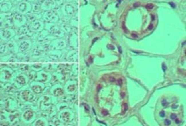 anti-ST2/IL-1 R4, Polyclonal, Novus Biologicals:Antibodies:Primary Antibodies
