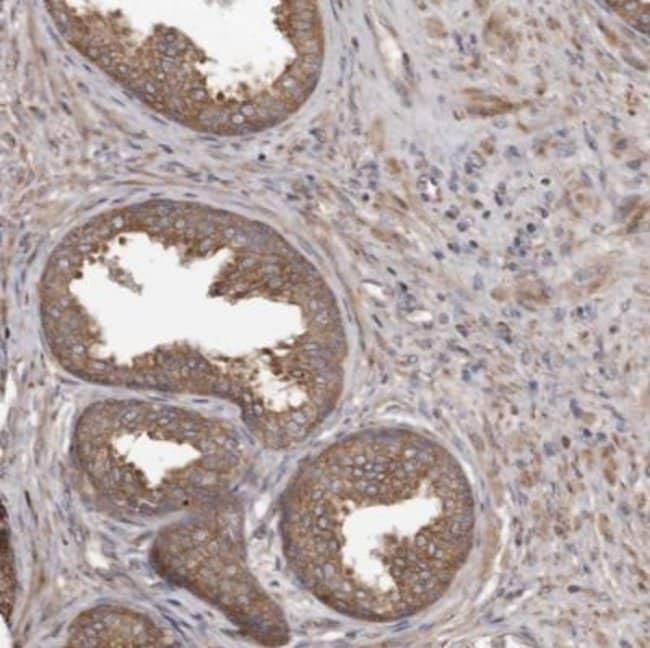 anti-STEAP2, Polyclonal, Novus Biologicals 0.1mL; Unlabeled:Life Sciences