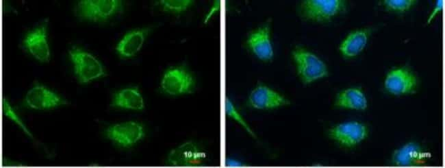 anti-SUCLG2, Polyclonal, Novus Biologicals 0.1mL; Unlabeled:Life Sciences