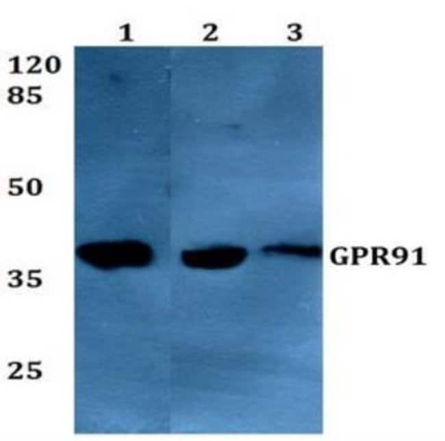 anti-SUCNR1/GPR91, Polyclonal, Novus Biologicals:Antibodies:Primary Antibodies