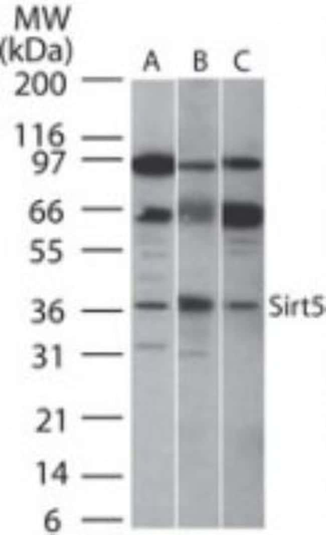 anti-Sirtuin 5/SIRT5, Polyclonal, Novus Biologicals:Antibodies:Primary