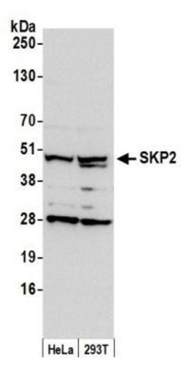 anti-Skp2, Polyclonal, Novus Biologicals 0.1mL; Unlabeled:Life Sciences