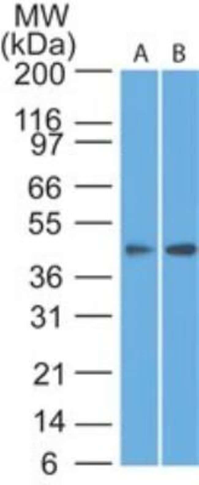 anti-Somatostatin R1/SSTR1, Polyclonal, Novus Biologicals:Antibodies:Primary
