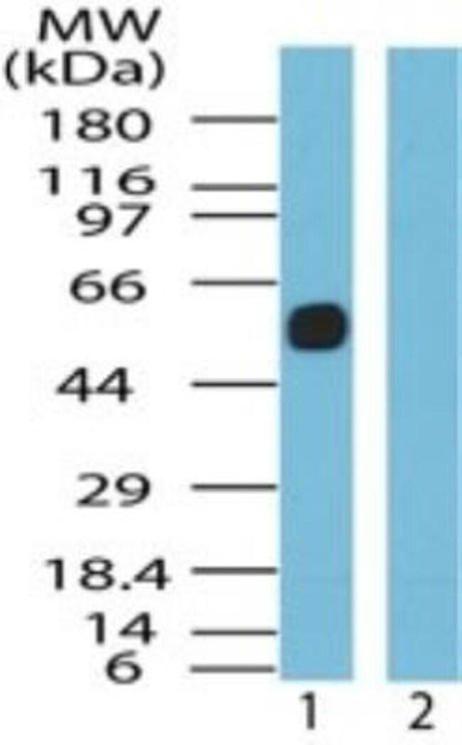 anti-Somatostatin R5/SSTR5, Polyclonal, Novus Biologicals:Antibodies:Primary