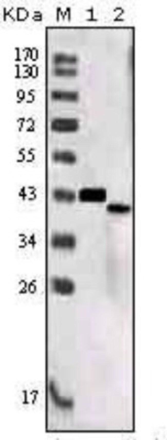 anti-SorLA, Clone: 7D7B11, Novus Biologicals 0.1mL; Unlabeled:Antibodies