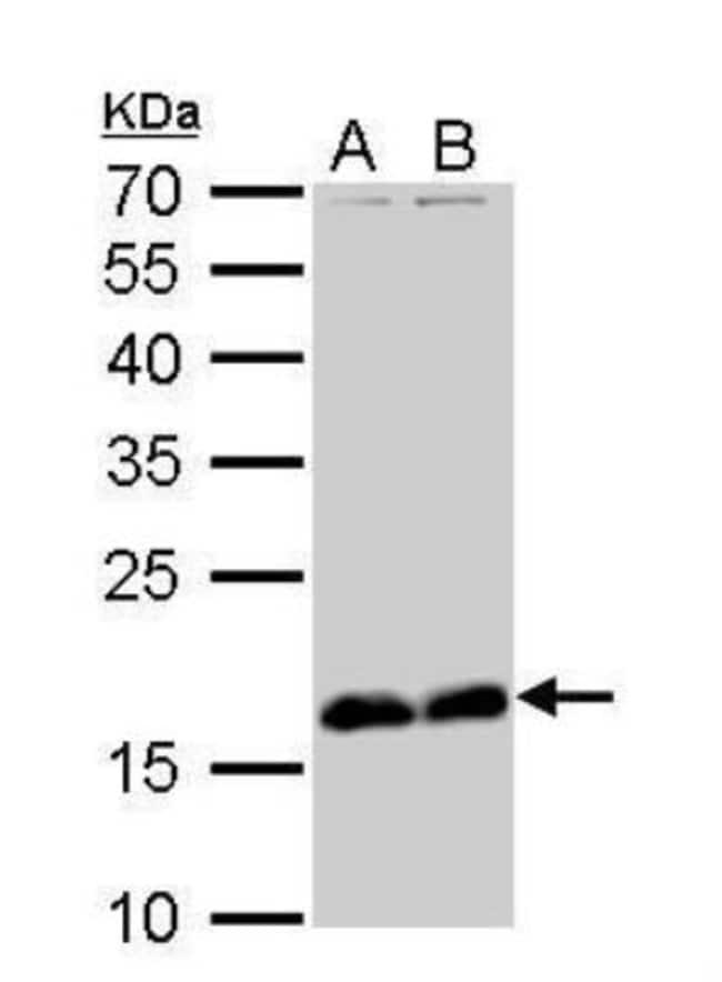 anti-Stathmin 1, Polyclonal, Novus Biologicals 0.1mg; Unlabeled:Life Sciences