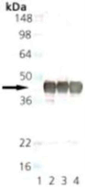 Synaptophysin Mouse anti-Human, Mouse, Rat, Bovine, Clone: SP15, Novus