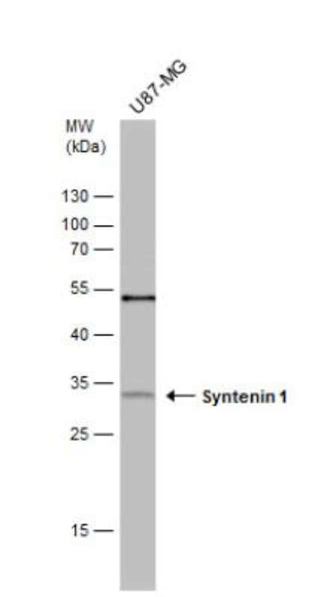anti-Syntenin 1, Polyclonal, Novus Biologicals 0.1mg; Unlabeled:Life Sciences