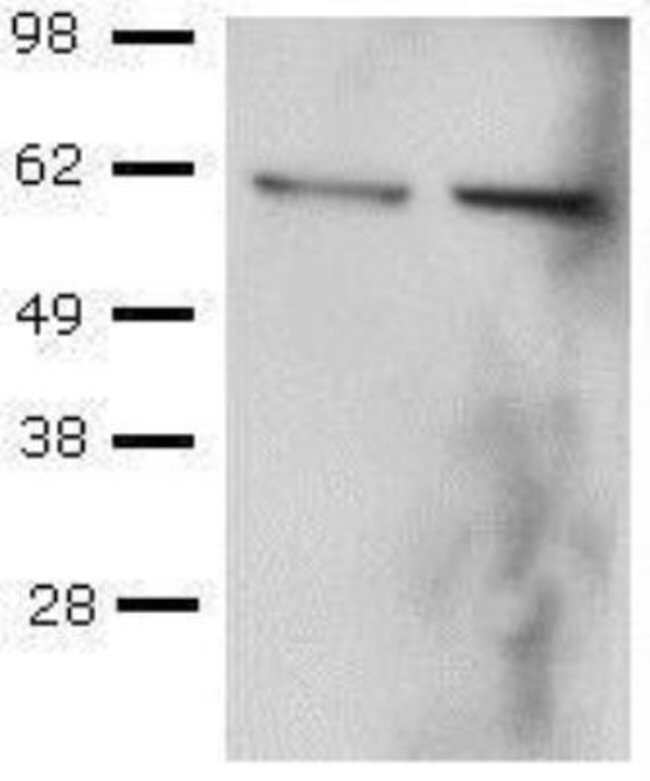 Mouse anti-T-bet/TBX21, Clone: 39D, Novus Biologicals:Antibodies:Primary