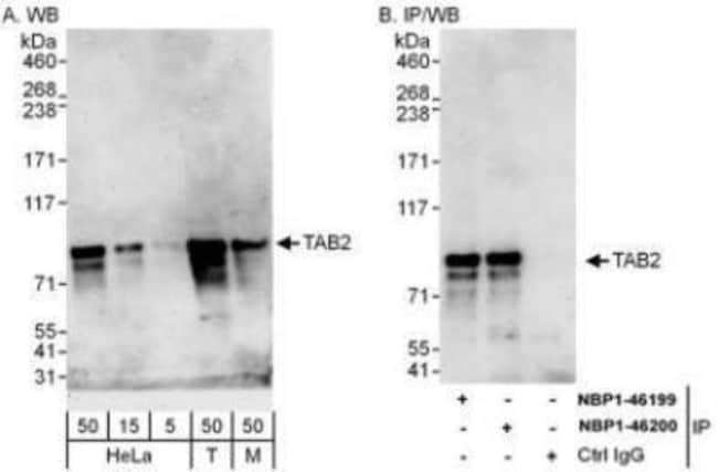anti-TAB2, Polyclonal, Novus Biologicals 0.1mg; Unlabeled:Life Sciences