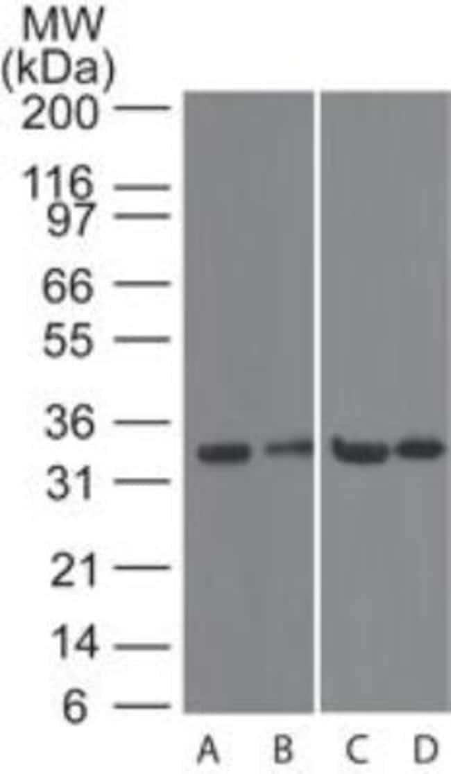 anti-TACI/TNFRSF13B/CVID, Polyclonal, Novus Biologicals:Antibodies:Primary