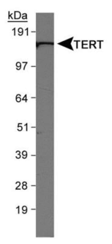 anti-TERT, Polyclonal, Novus Biologicals:Antibodies:Primary Antibodies