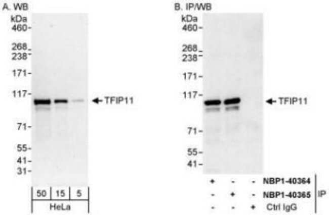 anti-TFIP11, Polyclonal, Novus Biologicals 0.1mL; Unlabeled:Life Sciences