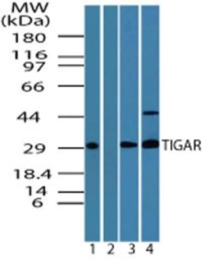 TIGAR/C12orf5 Rabbit anti-Human, Mouse, Rat, Polyclonal, Novus Biologicals:Antibodies:Primary