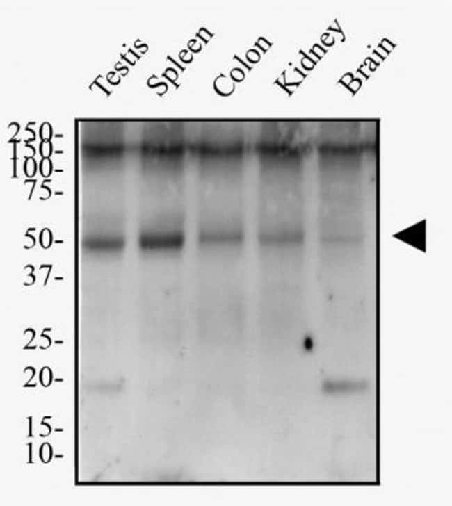 anti-TMEM26, Polyclonal, Novus Biologicals:Antibodies:Primary Antibodies