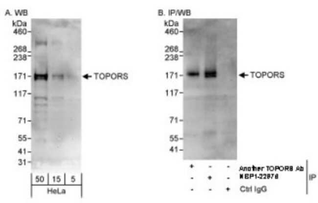 anti-TOPORS, Polyclonal, Novus Biologicals 0.1mL; Unlabeled:Life Sciences