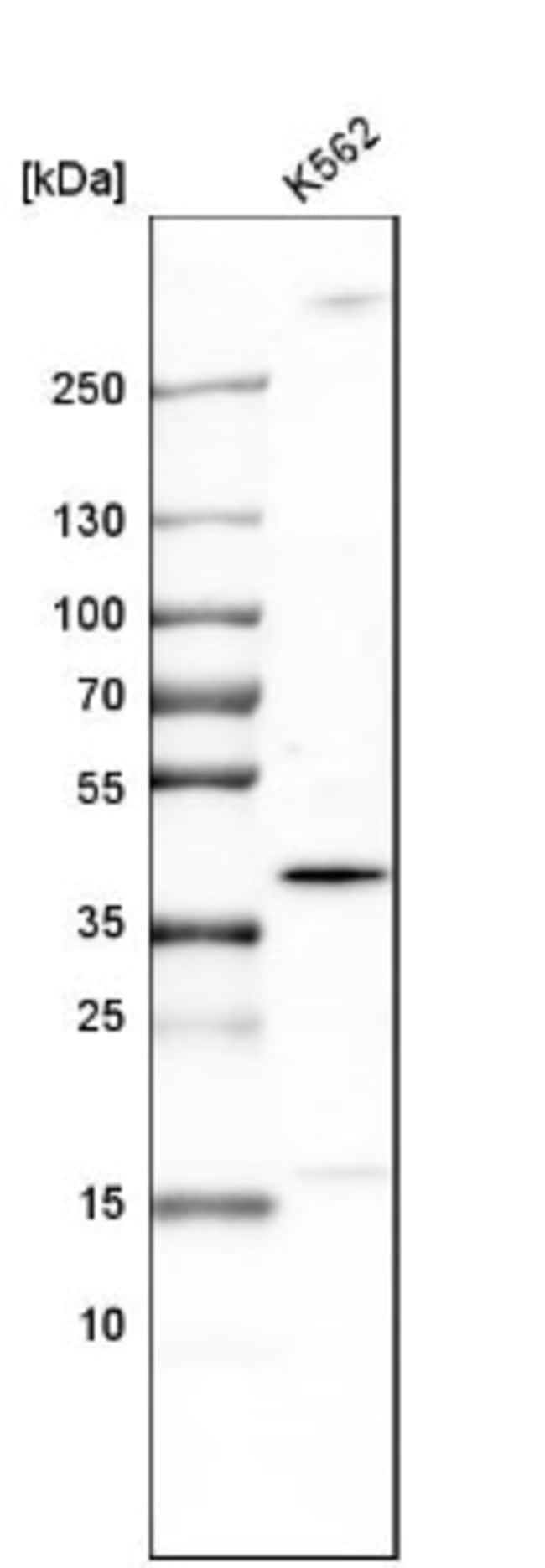 anti-TRIB2, Polyclonal, Novus Biologicals 0.1mL; Unlabeled:Life Sciences
