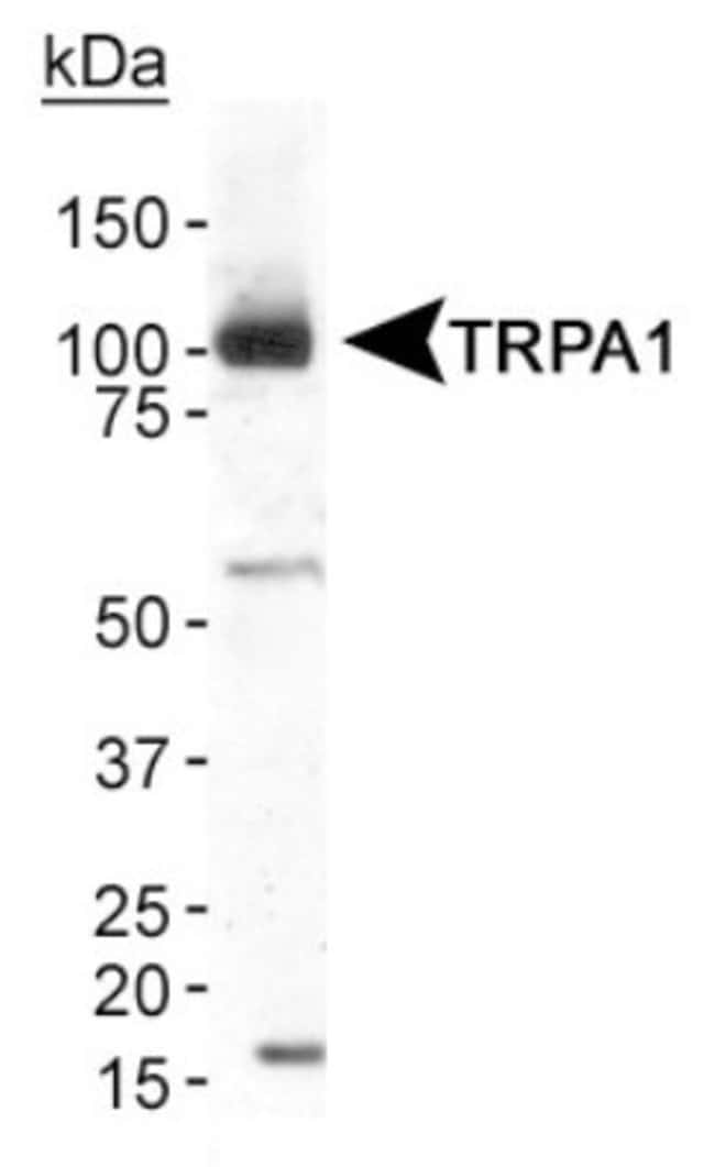 anti-TRPA1, Polyclonal, Novus Biologicals:Antibodies:Primary Antibodies