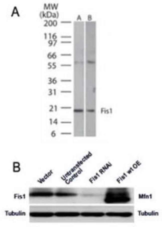 anti-TTC11, Polyclonal, Novus Biologicals:Antibodies:Primary Antibodies