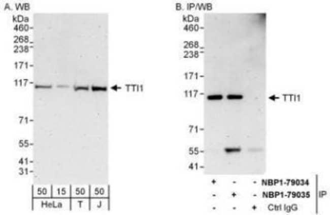 anti-TTI1, Polyclonal, Novus Biologicals 0.1mL; Unlabeled:Life Sciences