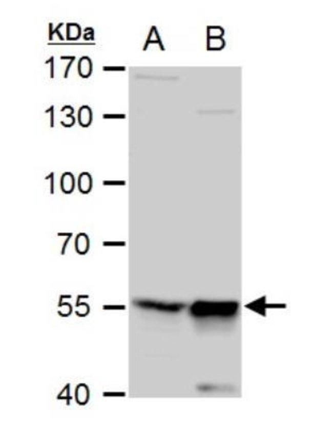 anti-TdT, Polyclonal, Novus Biologicals 0.1mg; Unlabeled:Life Sciences