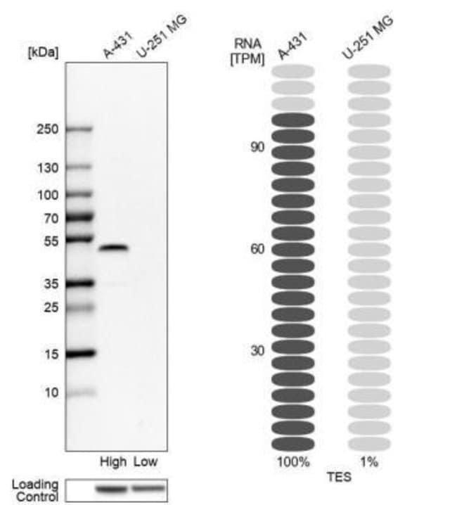anti-Testin, Polyclonal, Novus Biologicals:Antibodies:Primary Antibodies