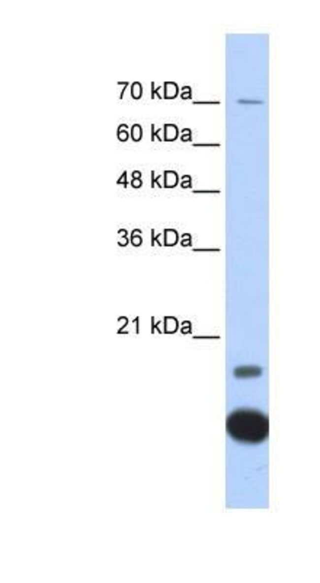 Thioredoxin-2 Rabbit anti-Human, Mouse, Rat, Bovine, Canine, Equine, Guinea