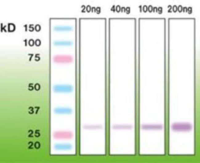 Rabbit anti-Trypsin 1/PRSS1, Clone: A16-N, Novus Biologicals:Antibodies:Primary
