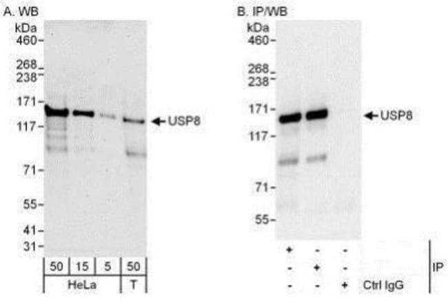 anti-UBPY/USP8, Polyclonal, Novus Biologicals 0.1mL; Unlabeled:Life Sciences