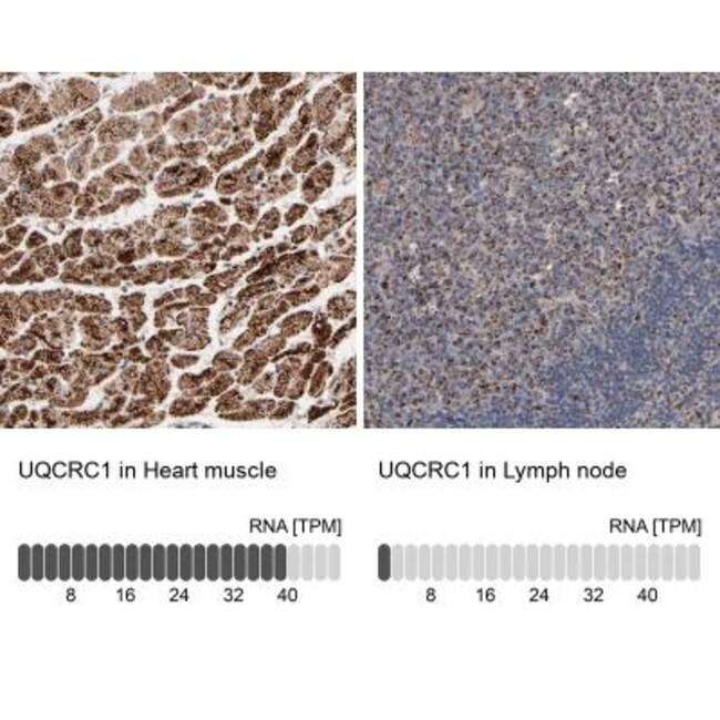 anti-UQCRC1, Polyclonal, Novus Biologicals 0.1mL; Unlabeled:Life Sciences