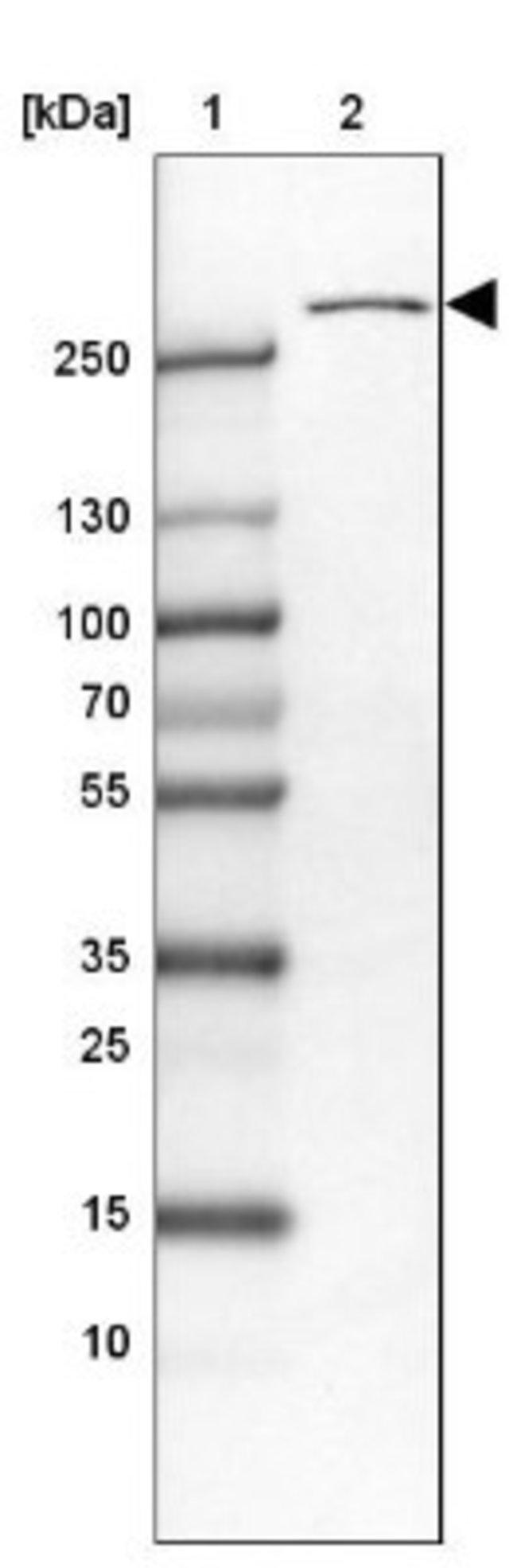 anti-USP24, Polyclonal, Novus Biologicals 0.1mL; Unlabeled:Life Sciences